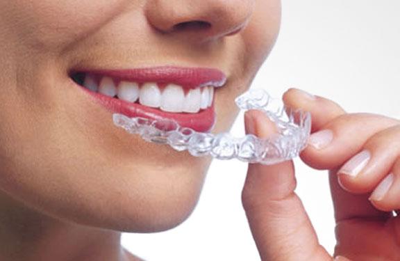 ortodoncia-