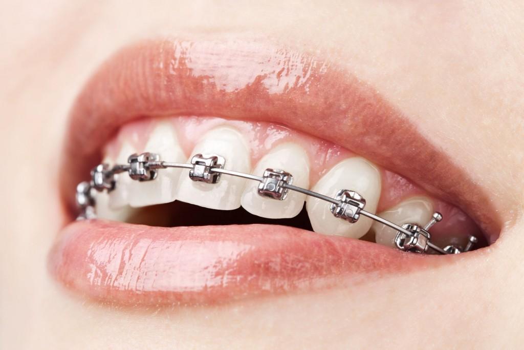 ortodoncia-a