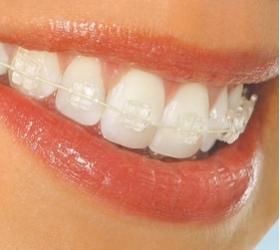 ortodoncia-fija-con-brackets-de-zafiro