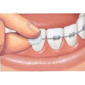 cera-ortodoncia