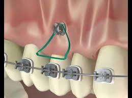 microimplantes de ortodoncia